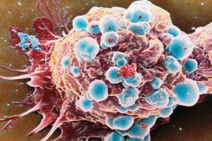Азербайджан делает успехи в лечении онкоболезней