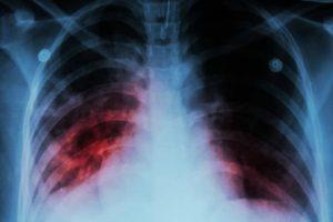Больные туберкулезом среди нас